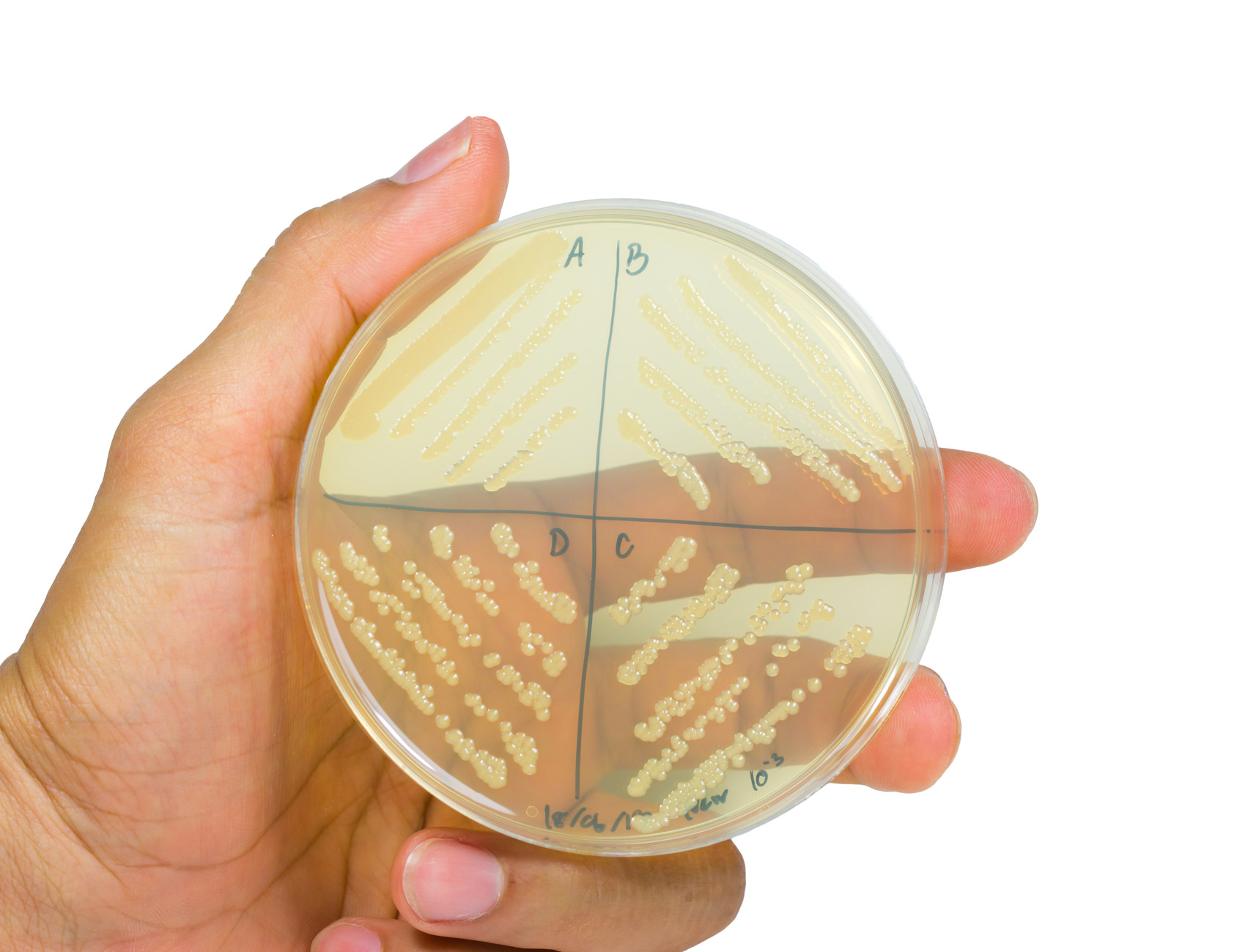 Petri dish with bacterial colonies. .